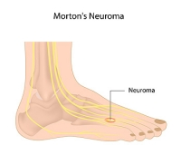What Is Morton's Neuroma?