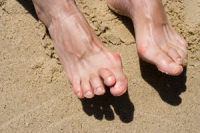 Certain Medical Conditions May Cause Hammertoe