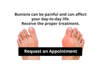 Are Bunions Affecting Your Everyday Life?