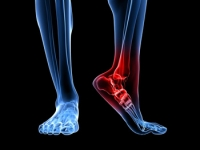 Ankle Tendonitis May Be A Common Form of Foot Pain