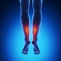 Causes of An Achilles Tendon Injury