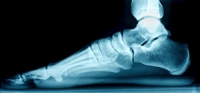Can Flat Feet Be Inherited?